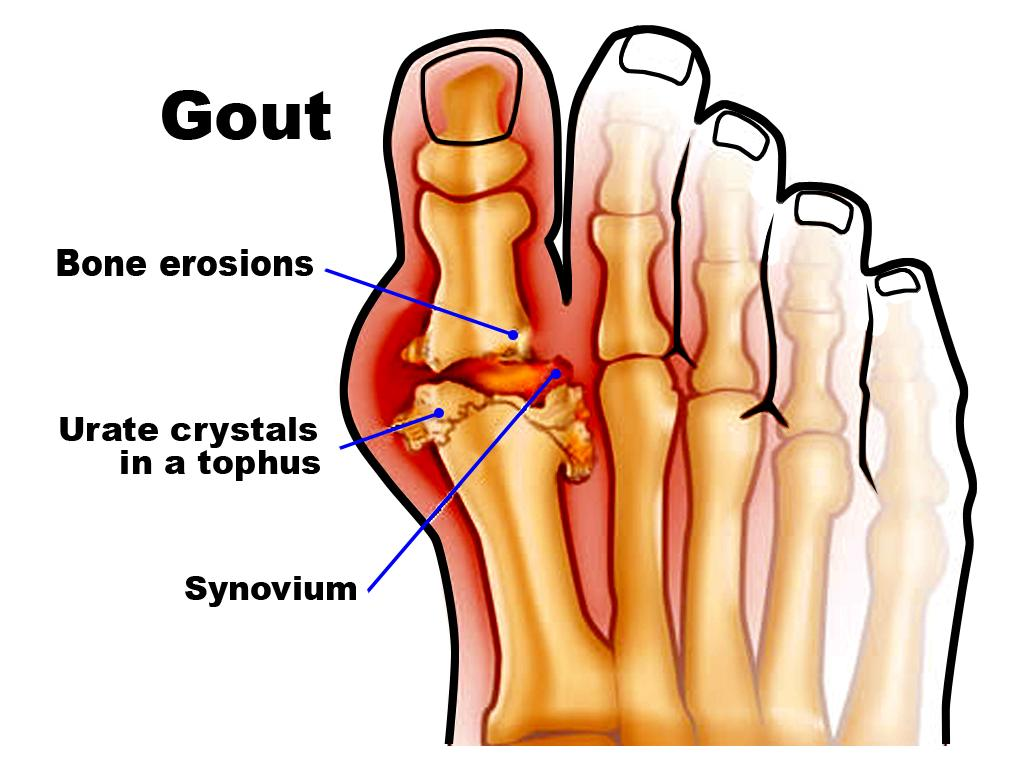 gout images க்கான பட முடிவு