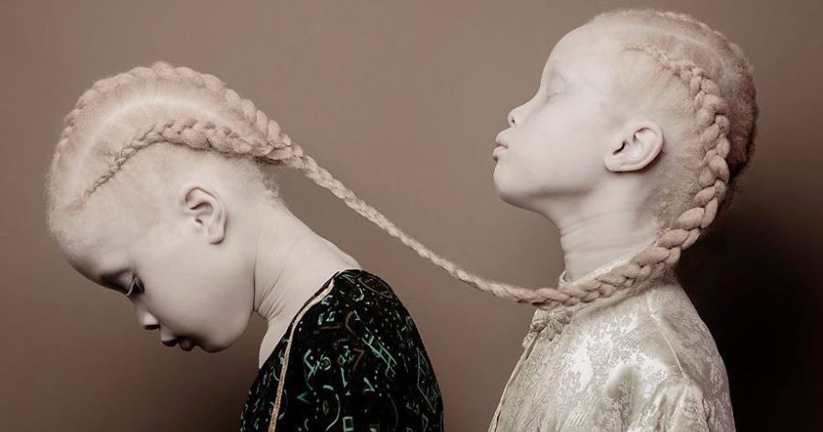 albino_twins_featured