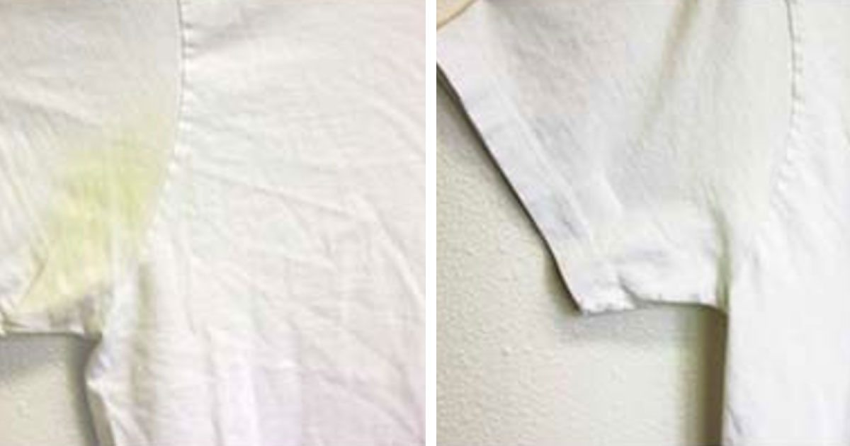 How to remove sweat stains from white clothes for Removing sweat stains from white shirts