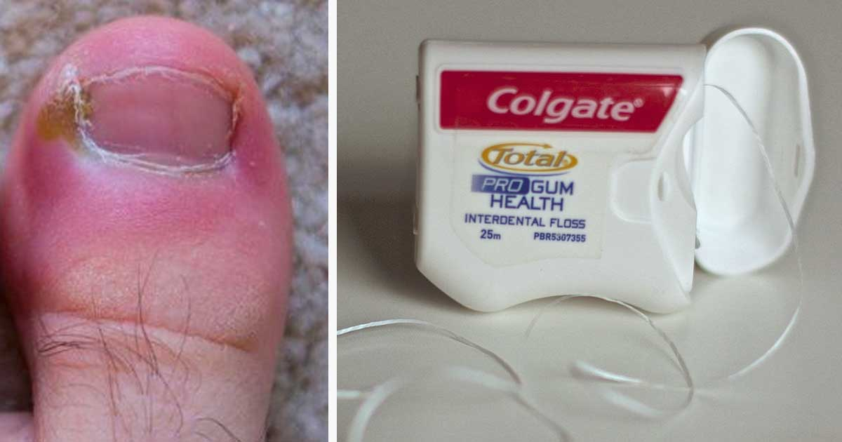 Ingrown toenails are painful. Here are 8 home remedies to ...