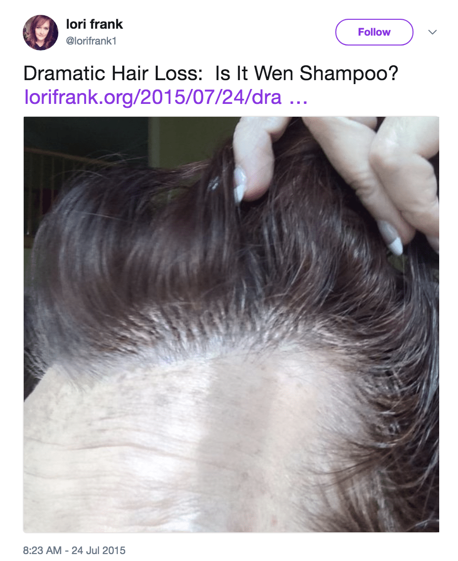 Does Wen Cause Hair Loss