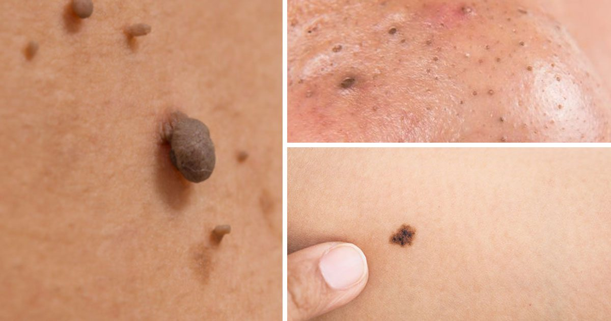 How To Get Rid Of Skin Tags On Face Naturally