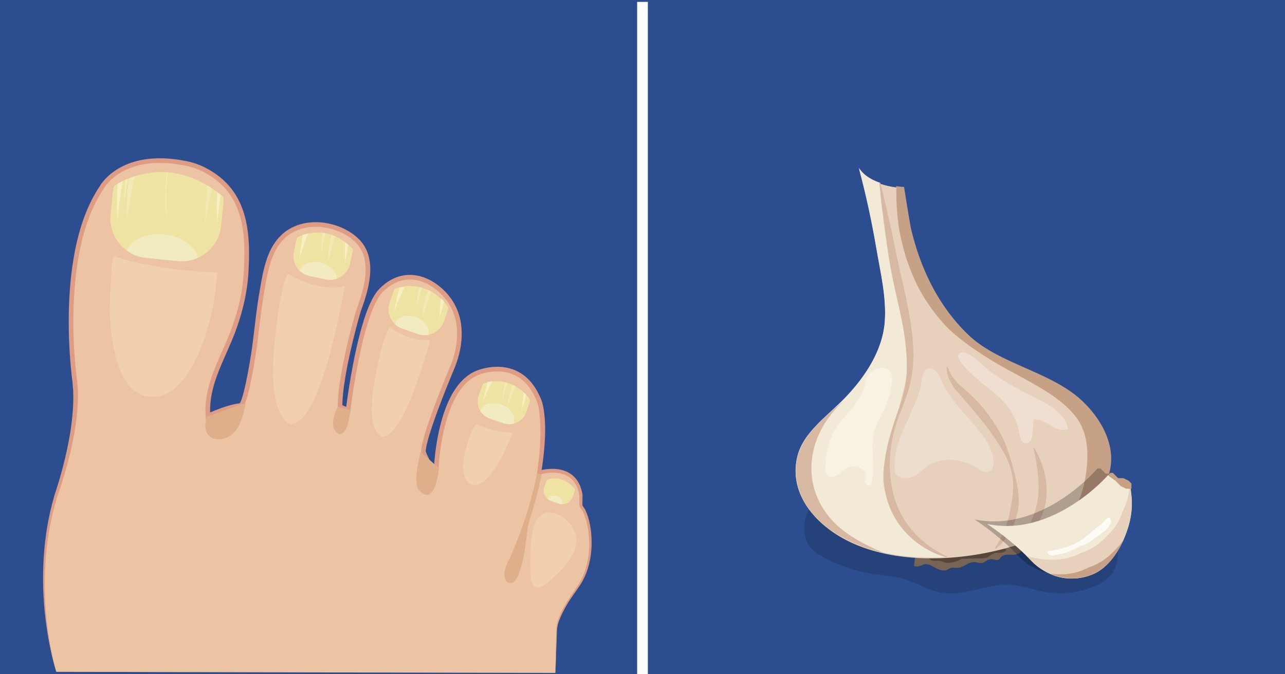 Here Are 7 Effective Home Remedies For Toenail Fungus
