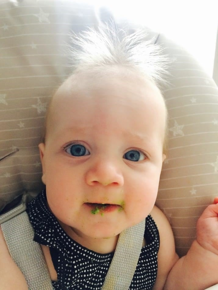 Baby Has Super-Rare 'Uncombable Hair Syndrome'