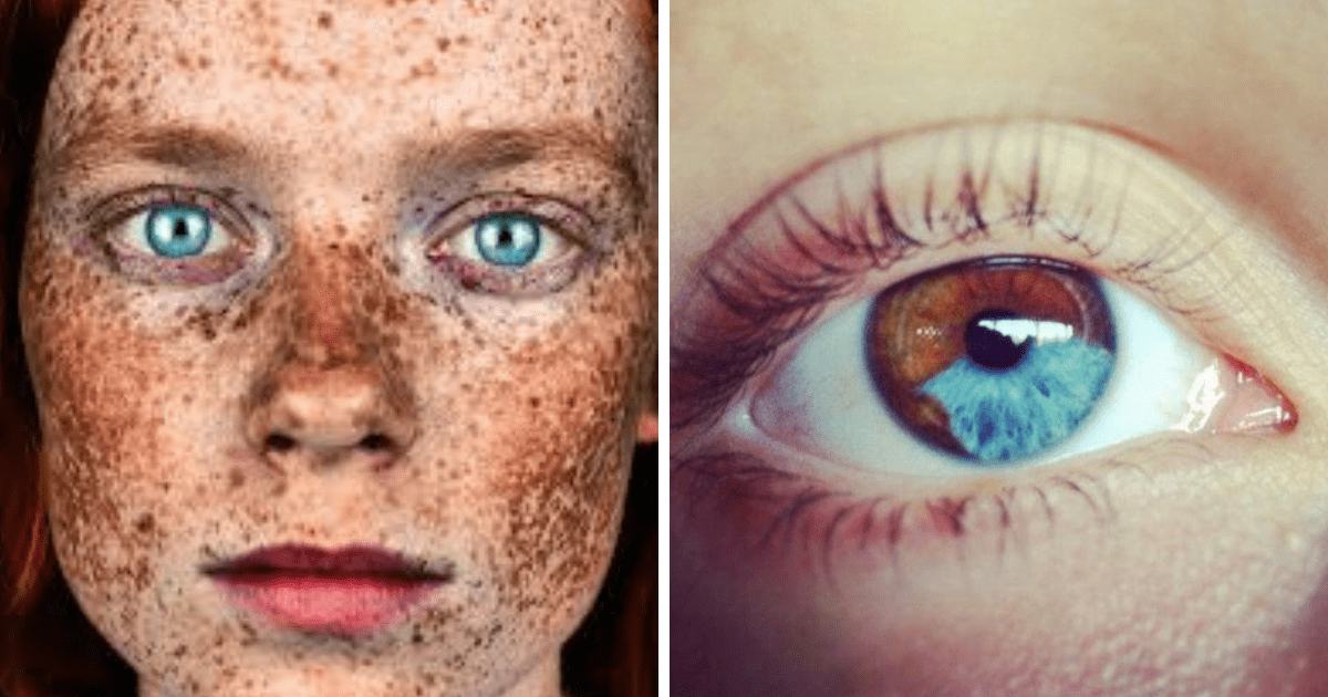 9 Awesome-Looking Genetic Mutations
