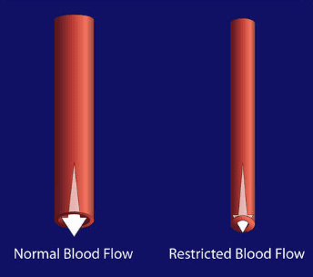 restricted-blood-flow
