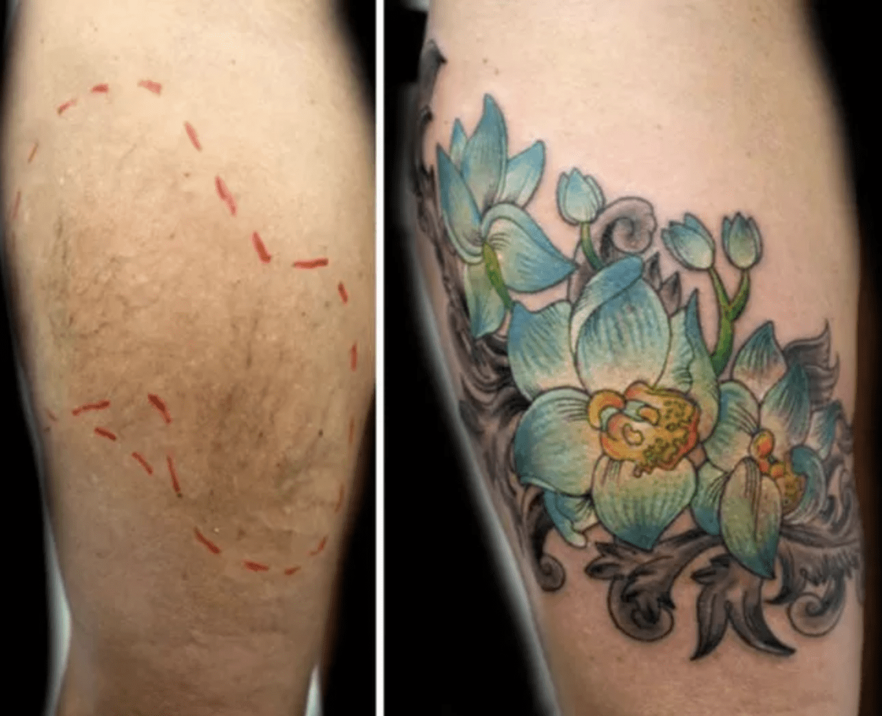 023e741464837 60+ gorgeous tattoos that transform scars and birthmarks into works ...