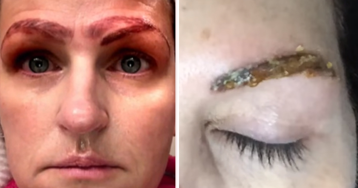 Women Warn Others About The Dangers Of Microblading