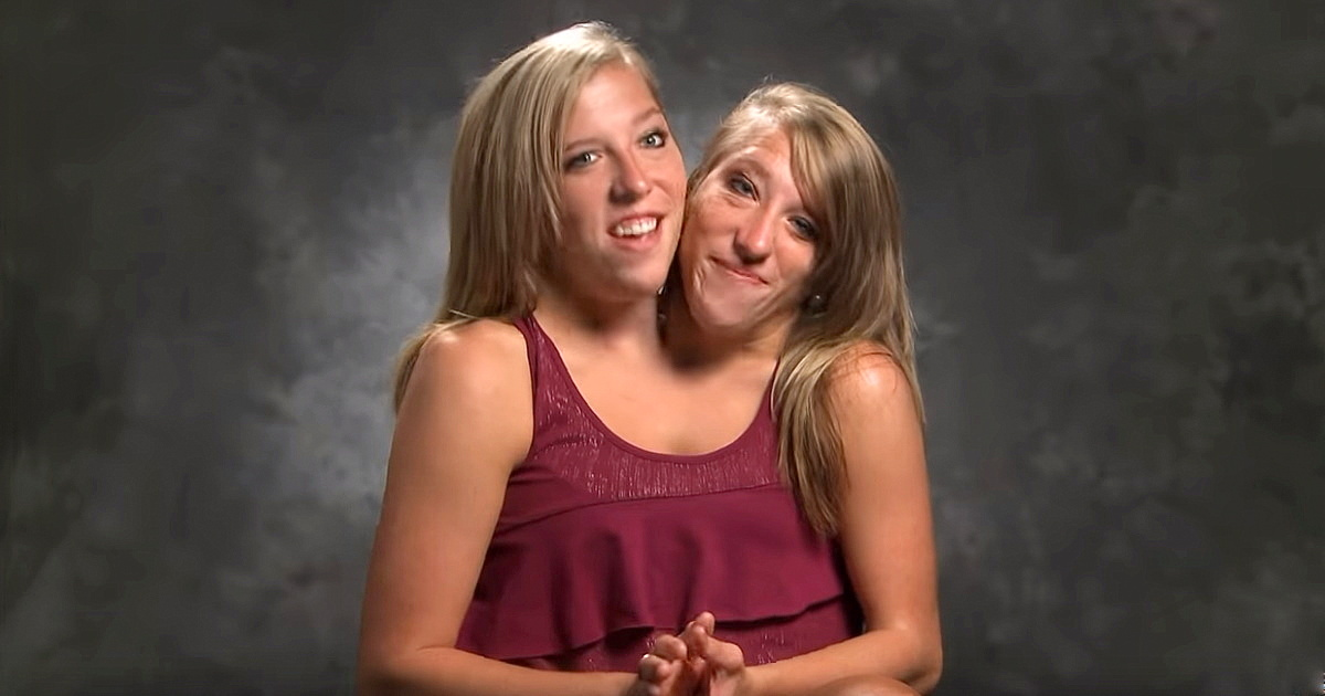 Abby and Brittany Hensel — See What the Famous Conjoined