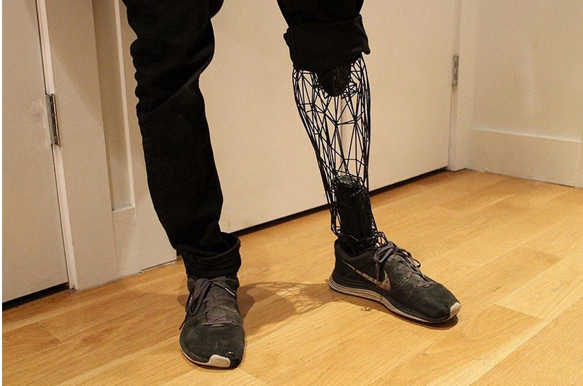 See _Through _Prosthetic