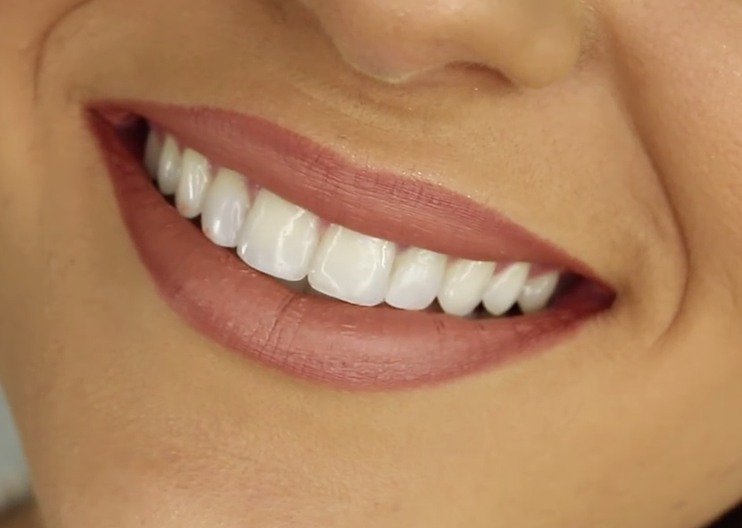 https://commons.wikimedia.org/wiki/File:Healthy_Smiling_Teeth.png